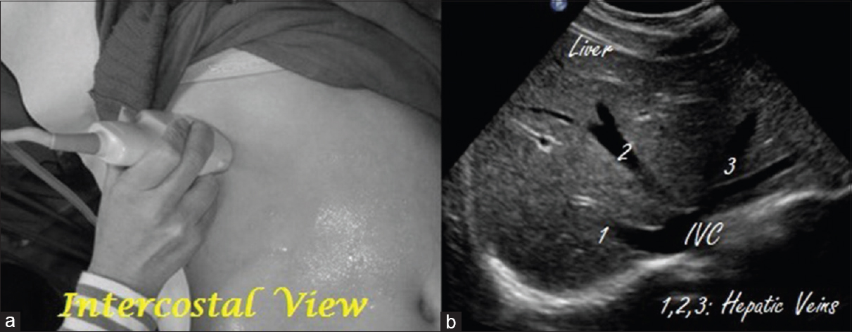 Bedside ultrasound of the abdomen - Part 1 Das SK - Curr Med Issues