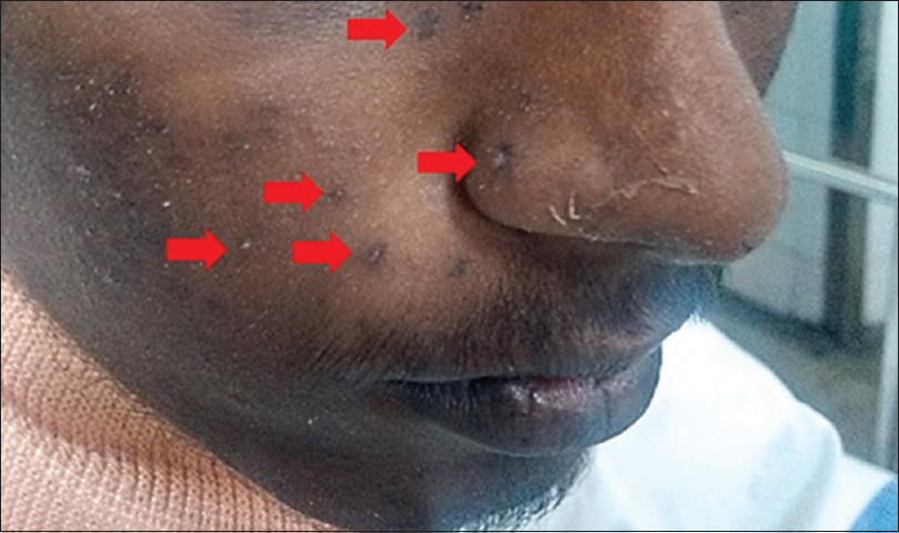 Figure 1: Multiple bee sting marks on the face and scalp.