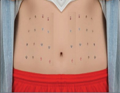 Figure 6: Injection site rotation to prevent lipohypertrophy.