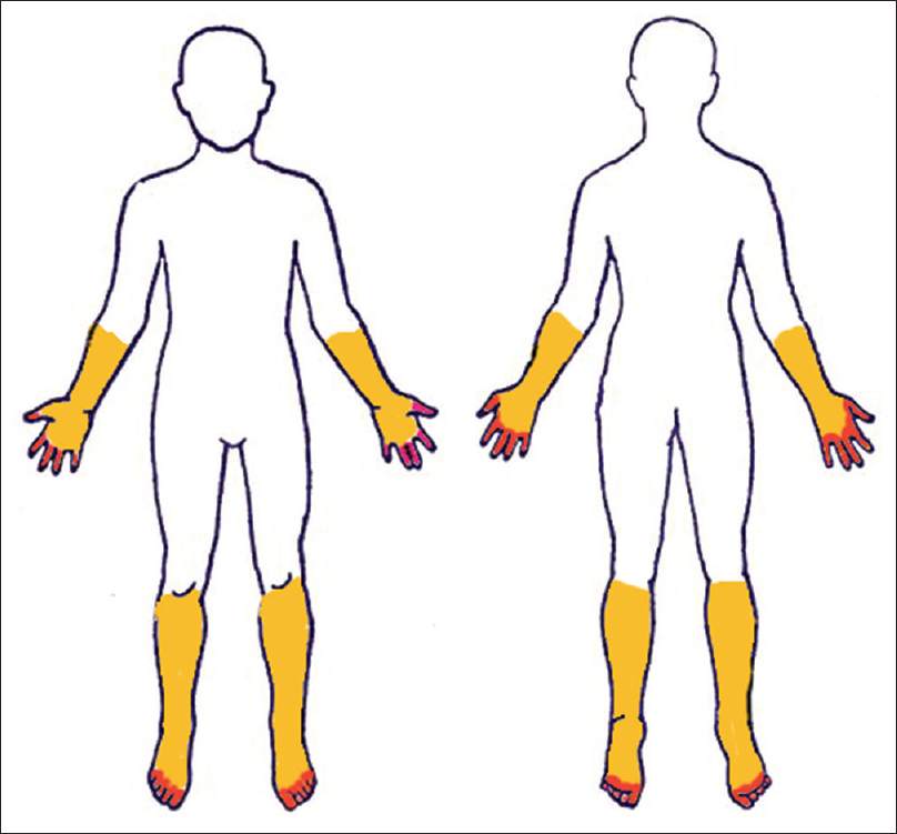 "Figure�2: ""Glove and stocking"" neuropathy."