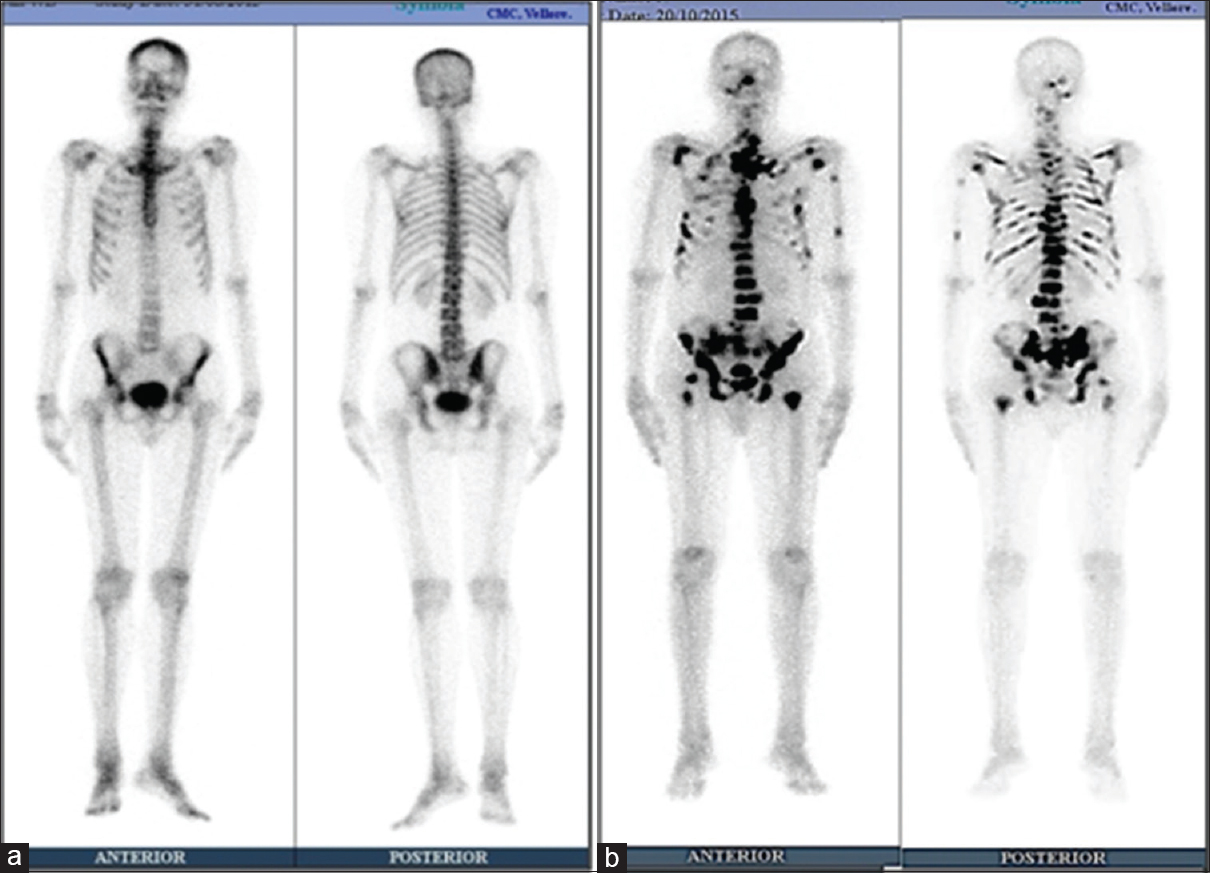 Figure 5: Bone scintigraphy. (a) Normal study (left): Symmetric uptake of the tracer. Areas due to proximity to the camera, more intense such as iliac wings and SI region. Presence of renal activity as technetium-99 m methylene diphosphonate is cleared through the renal system (Image courtesy: Nuclear Medicine, CMC Vellore). (b) Osseous metastases (right): 78 M – Metastatic prostate carcinoma, serum alkaline phosphatase – 1698, PSA – 396. Asymmetric irregular intense tracer uptake scattered involving the axial and appendicular skeleton (Image courtesy: Nuclear Medicine, CMC Vellore).