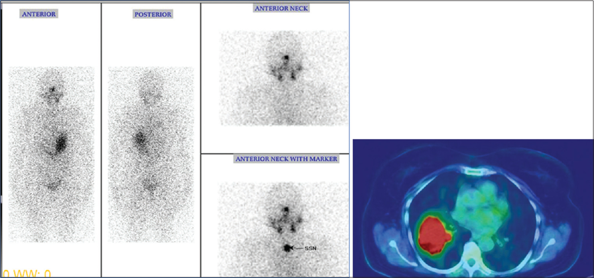 Figure 7: 64/F with papillary thyroid cancer, pT2N1M1 with lung metastases, thyroid whole-body radioiodine scintigraphy is negative (seen on the four images on the left), but fluorodeoxyglucose positron emission tomography-computed tomography shows lung lesions (colour image on the right). (Image courtesy: Department of Nuclear Medicine, Christian Medical College, Vellore).